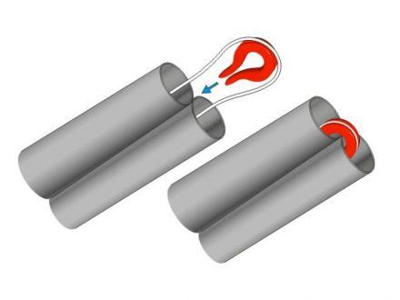 предпазител за клуп Stonfo Elastic Saver Art. 81